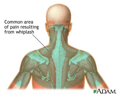 Whiplash injury strains the muscles and ligaments of the neck beyond