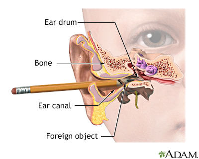 Foreign object in ear: MedlinePlus Medical Encyclopedia Image