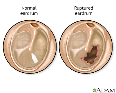 Ringing in ear perforated eardrum symptoms