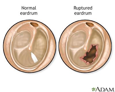Ear emergencies: MedlinePlus Medical Encyclopedia