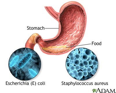 Food poisoning: MedlinePlus Medical Encyclopedia Image