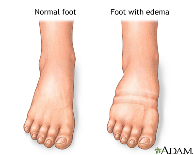 FOOT swelling: MedlinePlus Medical Encyclopedia Image