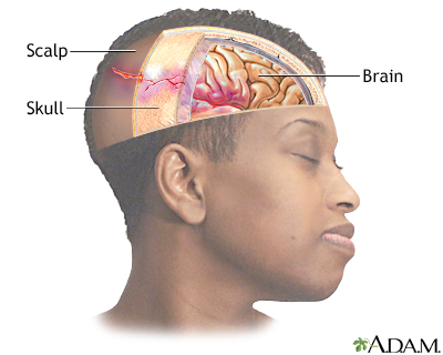 Head injury: MedlinePlus Medical Encyclopedia Image