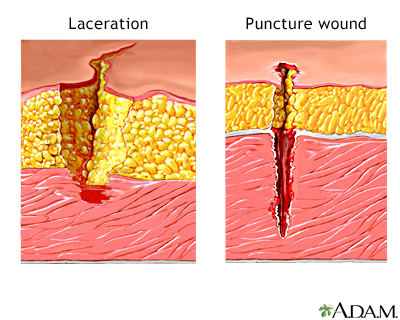 Laceration versus puncture wound: MedlinePlus Medical Encyclopedia ...