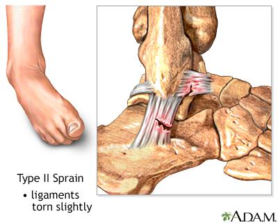 Type II ankle sprain