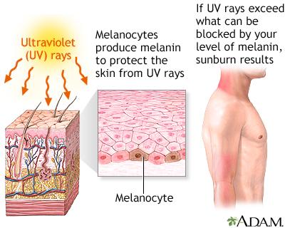 Sunburn: MedlinePlus Medical Encyclopedia