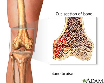 bone bruise results from compressive forces incurred during an ...