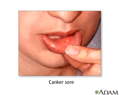 Canker sore: MedlinePlus Medical Encyclopedia Image