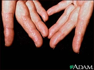 Amyloidosis of the fingers