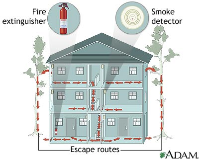 Fire safe home medlineplus medical encyclopedia image for Fire safety house