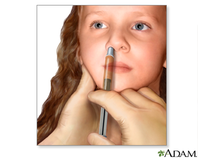 Nasal spray flu vaccine: MedlinePlus Medical Encyclopedia Image