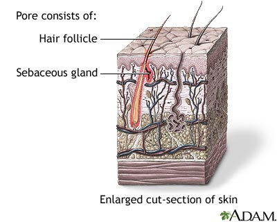 Hair follicle sebaceous gland: MedlinePlus Medical Encyclopedia Image