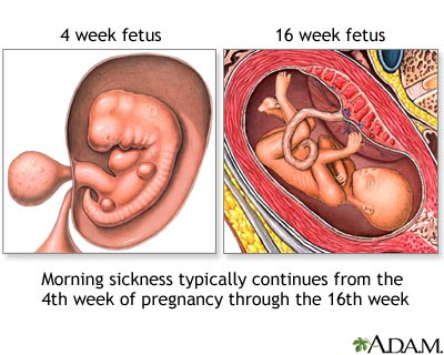 Morning sickness: MedlinePlus Medical Encyclopedia Image