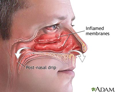 runny or stuffy nose can be due to colds allergies sinus infections ...