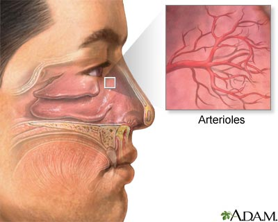 Nosebleed: MedlinePlus Medical Encyclopedia Image