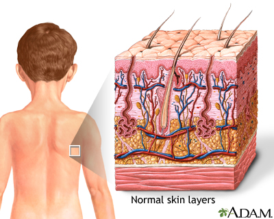 Skin: MedlinePlus Medical Encyclopedia Image