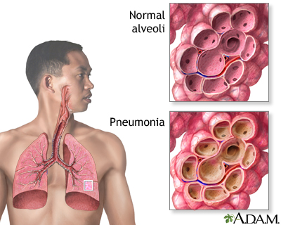 pneumonia - adults (community acquired): medlineplus medical, Human body