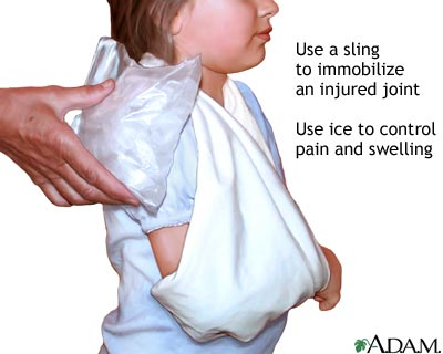 Triangular shoulder sling