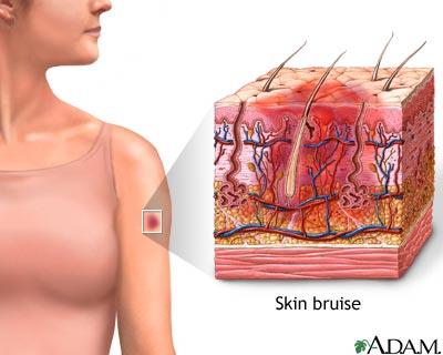 Skin bruise