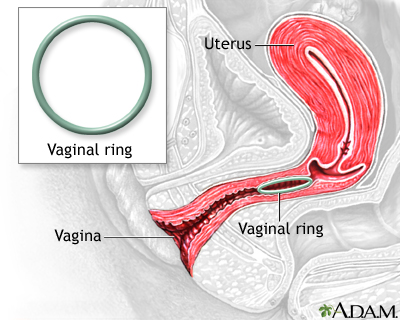 Recently-approved vaginal ring birth control prevents 97% ... |Vaginal Ring