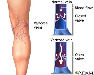 varicose veins medlineplus medical encyclopedia