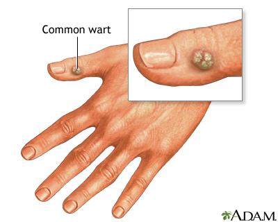 Warts: MedlinePlus Medical Encyclopedia