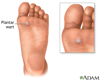 Warts: MedlinePlus Medical Encyclopedia