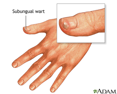Pictures of warts