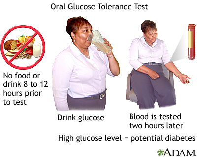 Oral Glucose Tolerance Test Procedure 70