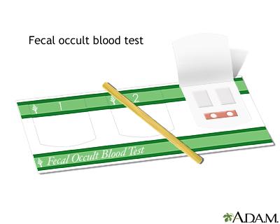 Fecal occult blood test: MedlinePlus Medical Encyclopedia ...