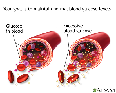 Glucose in blood: MedlinePlus Medical Encyclopedia Image
