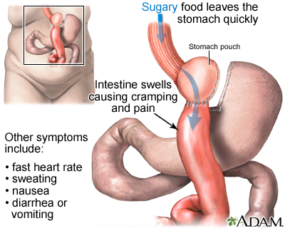 Dumping Syndrome Medlineplus Medical Encyclopedia Image