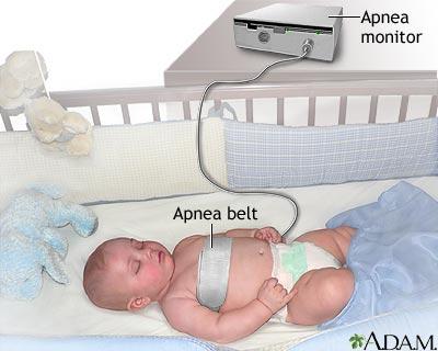 Apnea monitor
