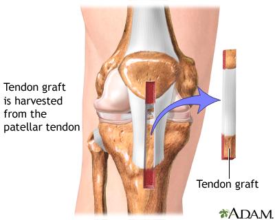 Anterior cruciate ligament repair - Series—Procedure, part 1 ...