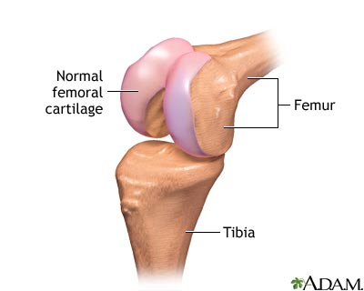 Partial knee replacement - series