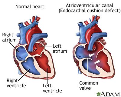 Endocardial Cushion Defect Medlineplus Medical Encyclopedia