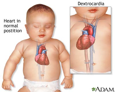 Dextrocardia Medlineplus Medical Encyclopedia
