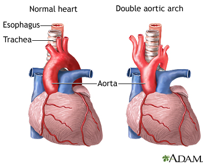 Double Aortic Arch Medlineplus Medical Encyclopedia