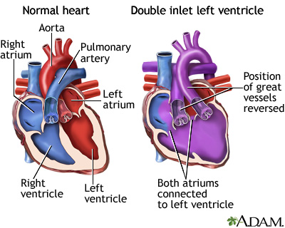 Double Inlet Left Ventricle Medlineplus Medical Encyclopedia