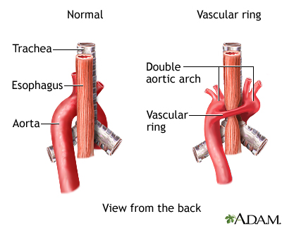 Vascular Ring Around Trachea