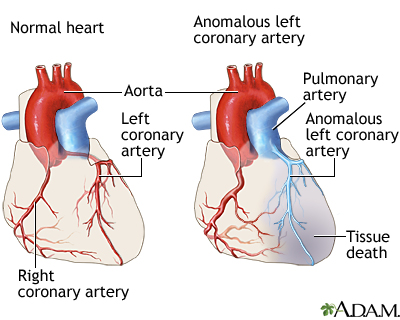 Anomalous left coronary artery from the pulmonary artery causes ccuart Images