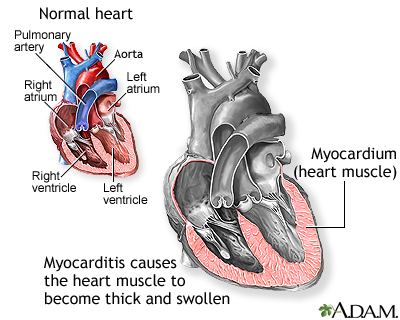 myocarditis: medlineplus medical encyclopedia, Muscles