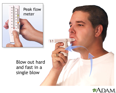 How to measure peak flow: MedlinePlus Medical Encyclopedia