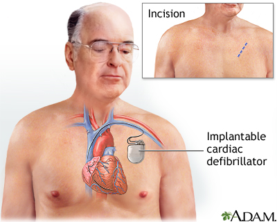 Ventricular tachycardia medlineplus medical encyclopedia - Ablation chambre implantable ...