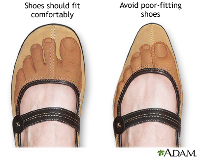 How To Wear Narrow Shoes With Wide Feet