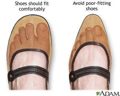 Where Do You Buy Diabetic Shoes