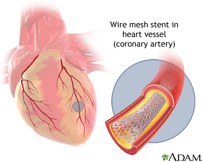 Heart Arteries Diagram | Angioplasty And Stent Placement Heart Medlineplus Medical