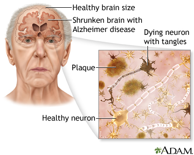 the description of the organic brain syndrome dementia Dementia: dementia, chronic, usually progressive deterioration of intellectual capacity associated with the widespread loss of nerve cells and the shrinkage of brain tissue.