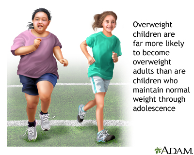 Obesity  >> Obesity Medlineplus Medical Encyclopedia