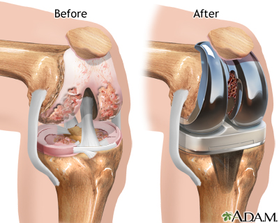Knee Joint Replacement Seriesaftercare Medlineplus Medical